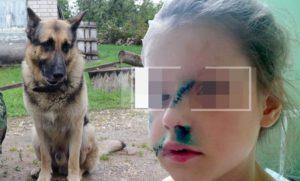 чужая собака покусала ребенка